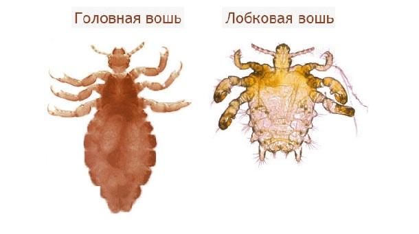 Как выглядят вши и гниды, фото и описание