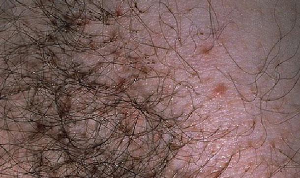 Лобковые вши: симптомы лечение, фото у женщин, откуда берутся у мужчин