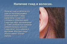 Признаки симптомы вшей на голове